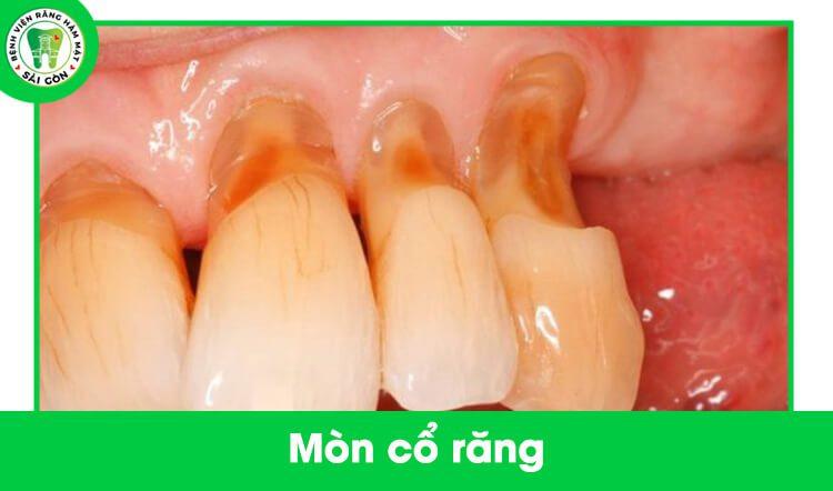 răng bị mòn cổ