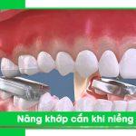 nâng khớp cắn niềng răng