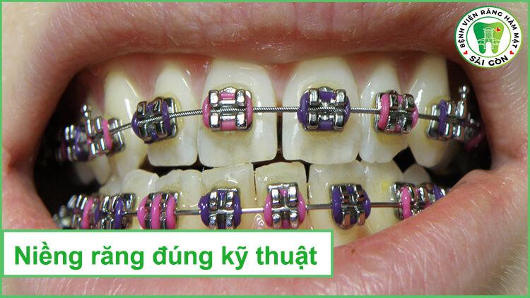 nieng-rang-tai-nha-co-tot-khong