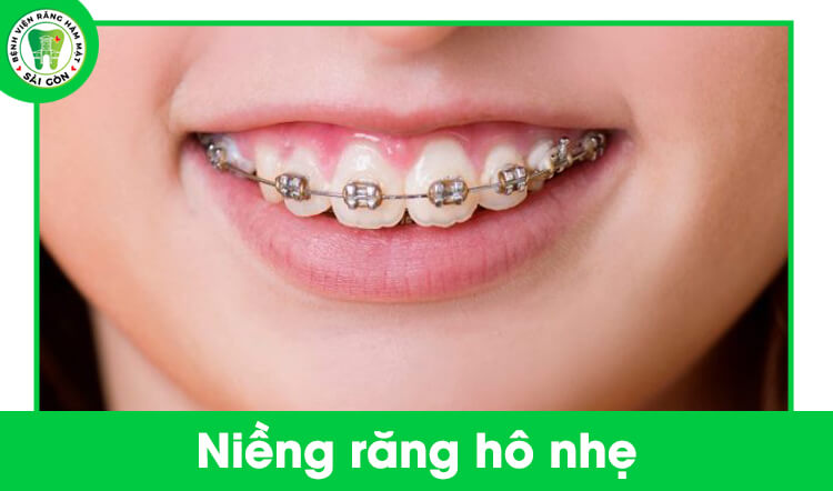 niềng răng hô nhẹ