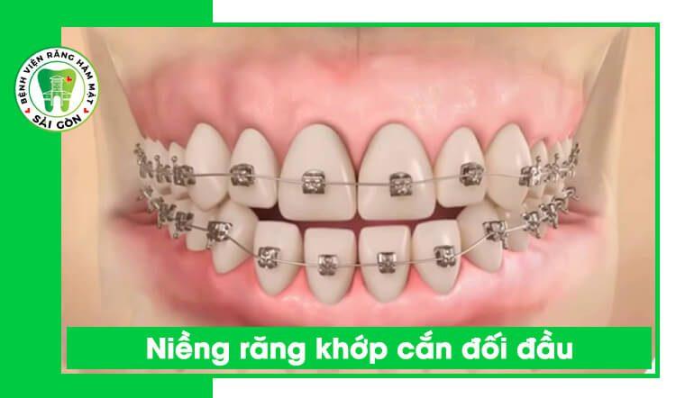 niềng răng khớp cắn đối đầu