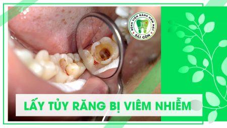 quy trình điều trị tủy răng