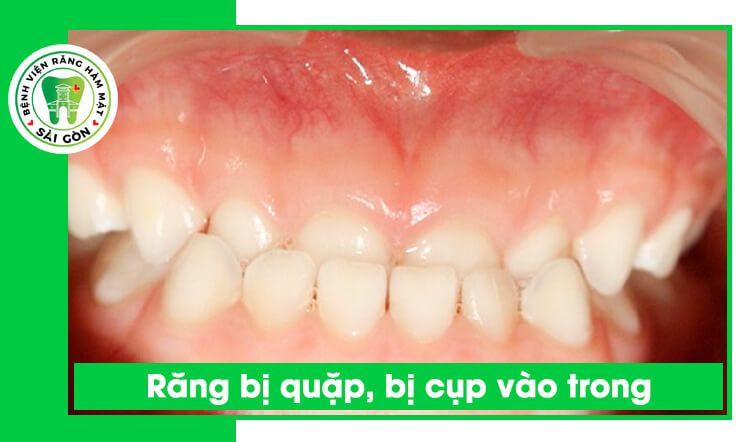 răng bị cụp bị quặp vào trong