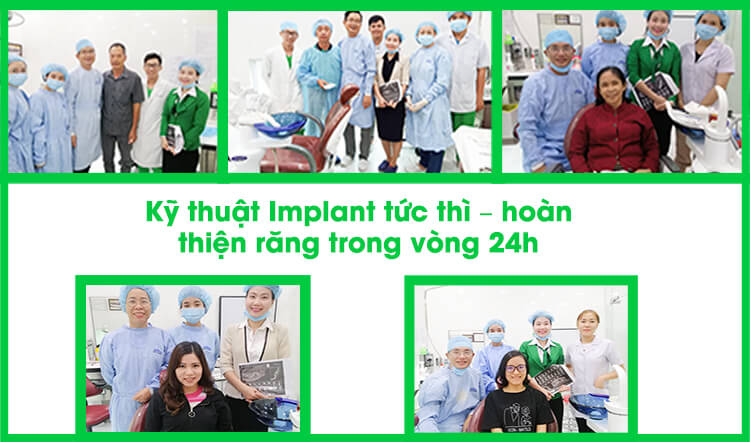 implant-tuc-thi
