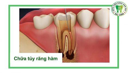 viêm tủy răng hàm
