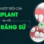 Implant và cầu răng sứ