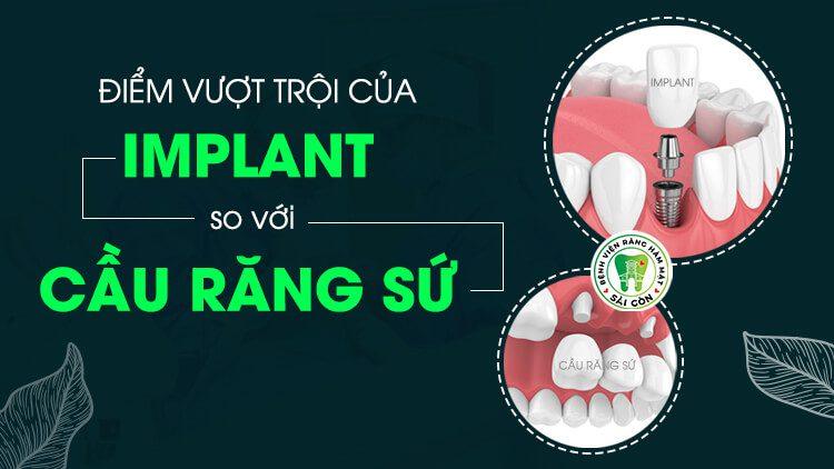 implant-va-lam-cau-su