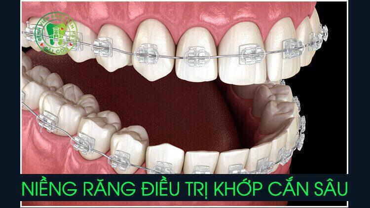 niềng răng điều trị khớp cắn sâu