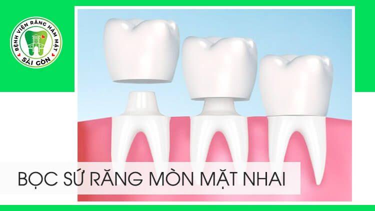 bọc răng sứ cho răng bị mòn