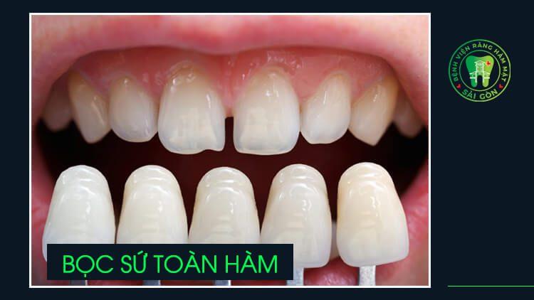 bọc răng sứ toàn hàm