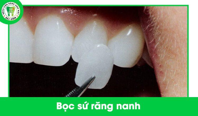 bọc sứ răng nanh