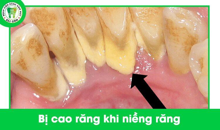 cao răng làm tụt nướu
