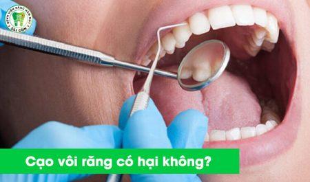 cạo vôi răng làm sáng răng