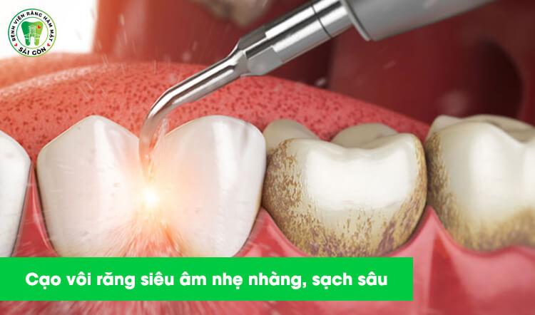 cạo vôi răng siêu âm nhẹ nhàng