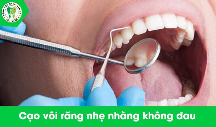 cạo vôi răng mất bao lâu thời gian