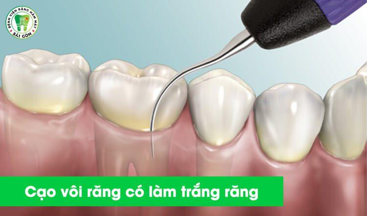 cạo vôi răng có làm trắng răng