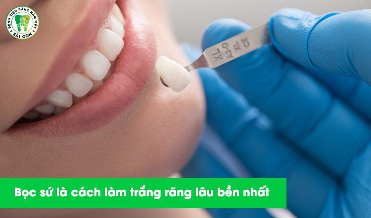 dán sứ làm trắng răng