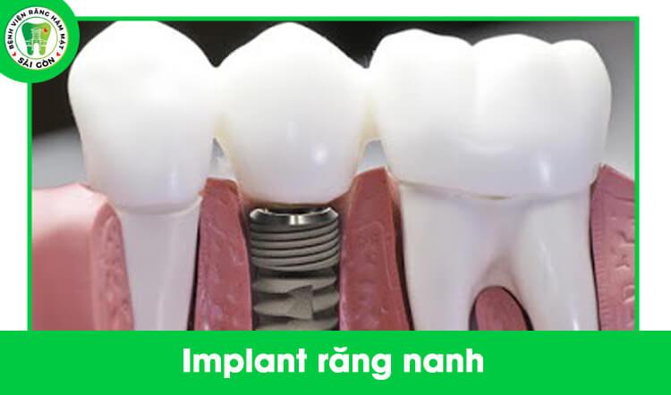 trồng implant răng sứ