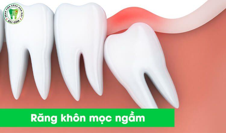 Răng khôn mọc ngầm có nên nhổ không