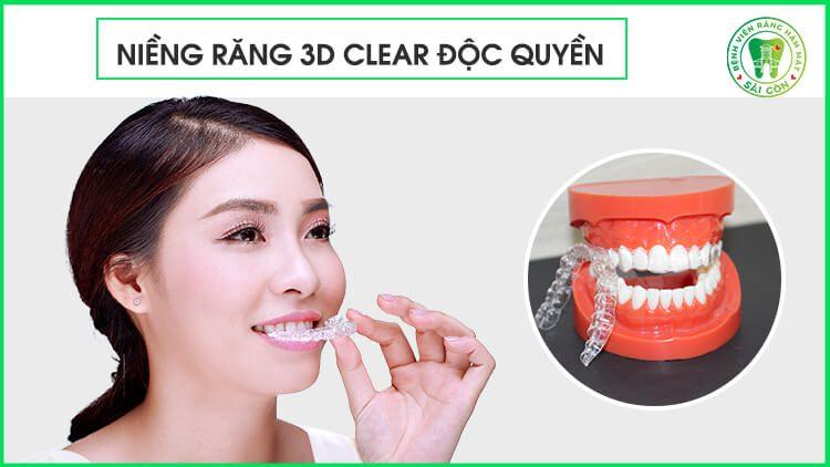 niềng răng tháo lắp 3D Clear