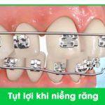 niềng răng bị tụt nướu