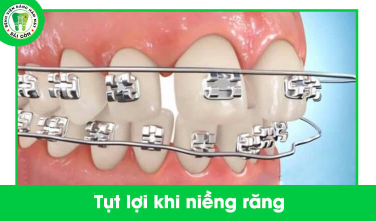 niềng răng bị tụt lợi