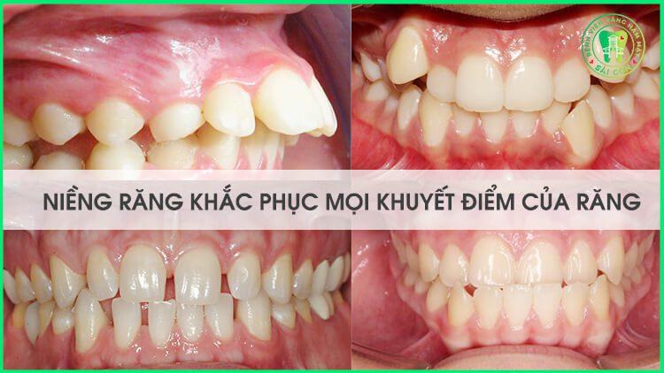 niềng răng chỉnh răng hô móm