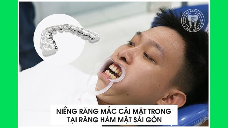 niềng răng mặt trong tại Răng Hàm Mặt Sài Gòn