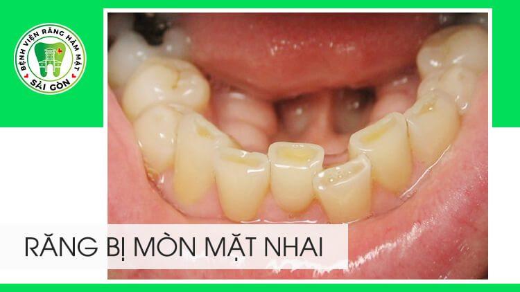răng bị mòn mặt nhai