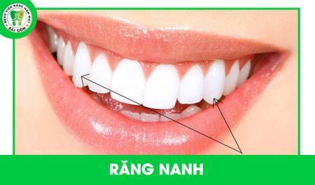 trồng răng nanh