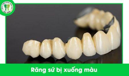răng sứ bị xuống màu