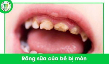 Răng bé bị mòn