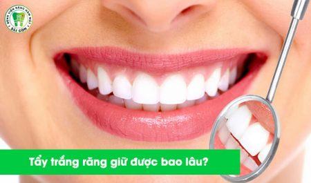 Tẩy trắng răng giữ được bao lâu
