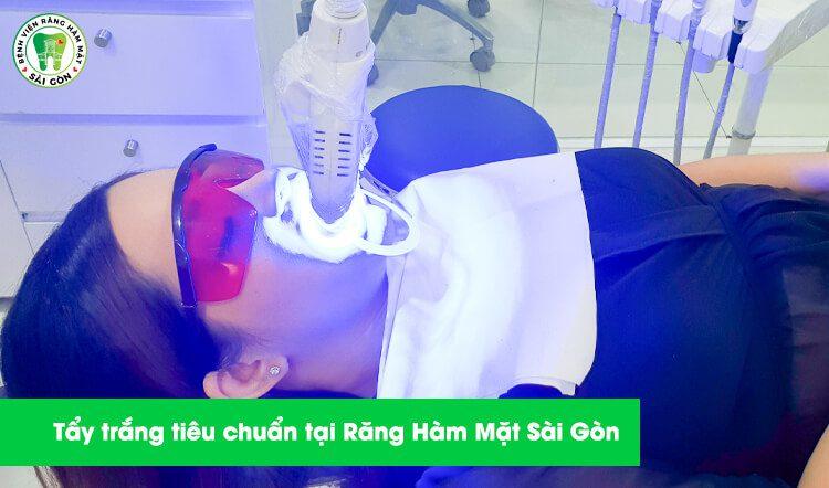 Tẩy trắng răng tại Răng Hàm Mặt Sài Gòn