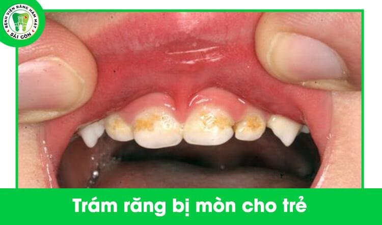 trám răng cho trẻ