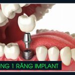 trồng 1 răng Implant