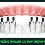 Trồng Implant có đau không