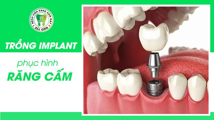 trồng răng cấm cố định