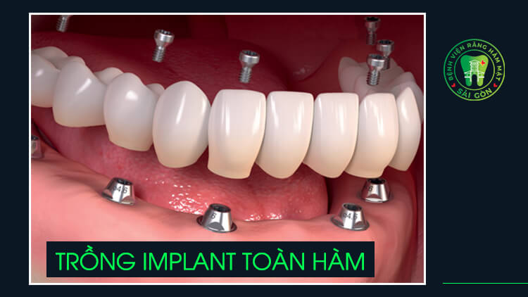 trồng răng nguyên hàm