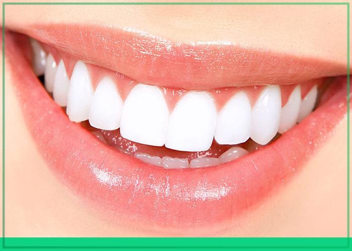 những lưu ý khi làm răng