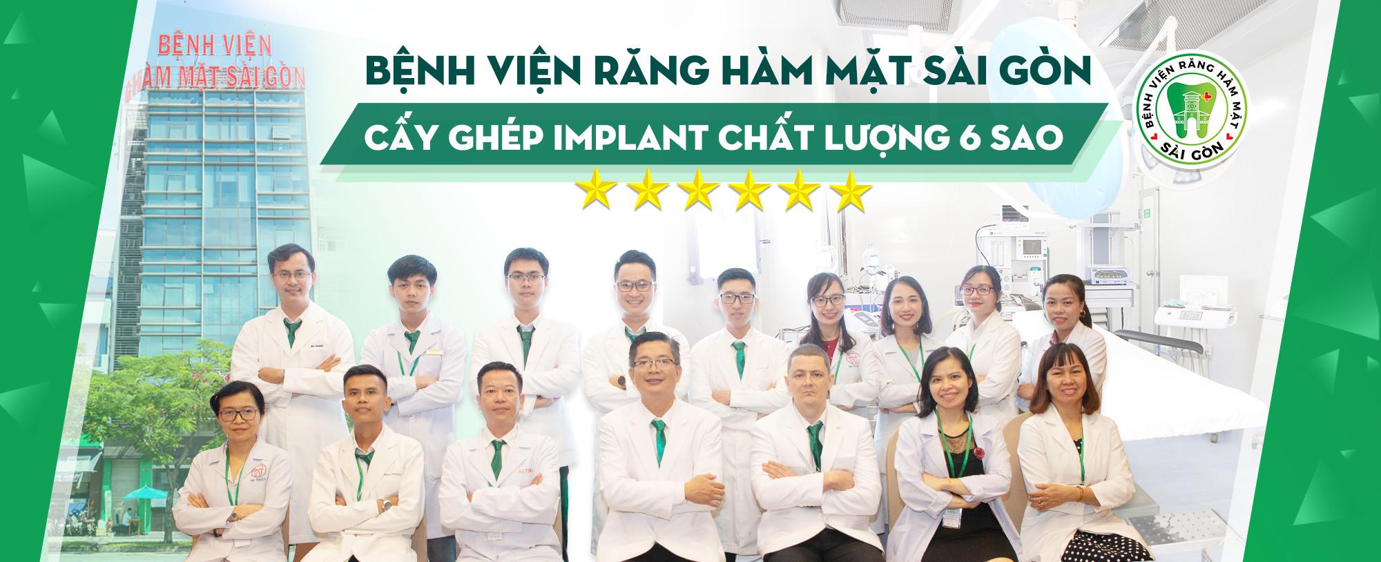 Cấy ghép implant 6 Sao