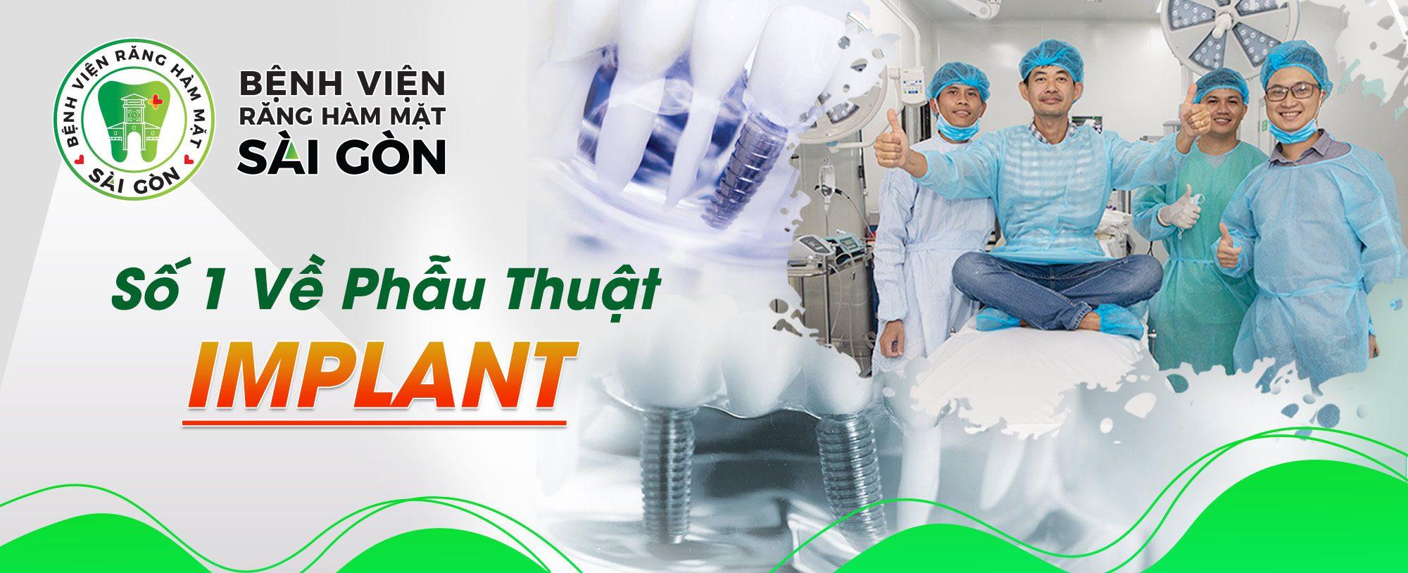 Địa Chỉ Cấy Ghép Implant Số 1