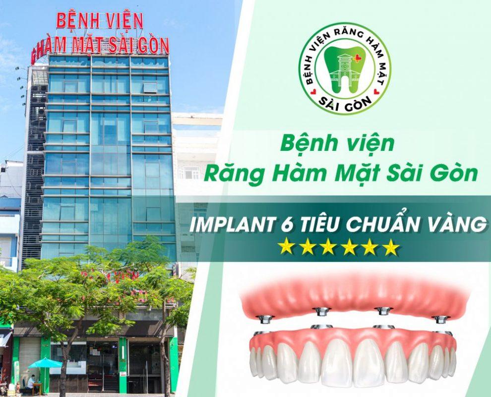 Implant đạt 6 tiêu chuẩn vàng