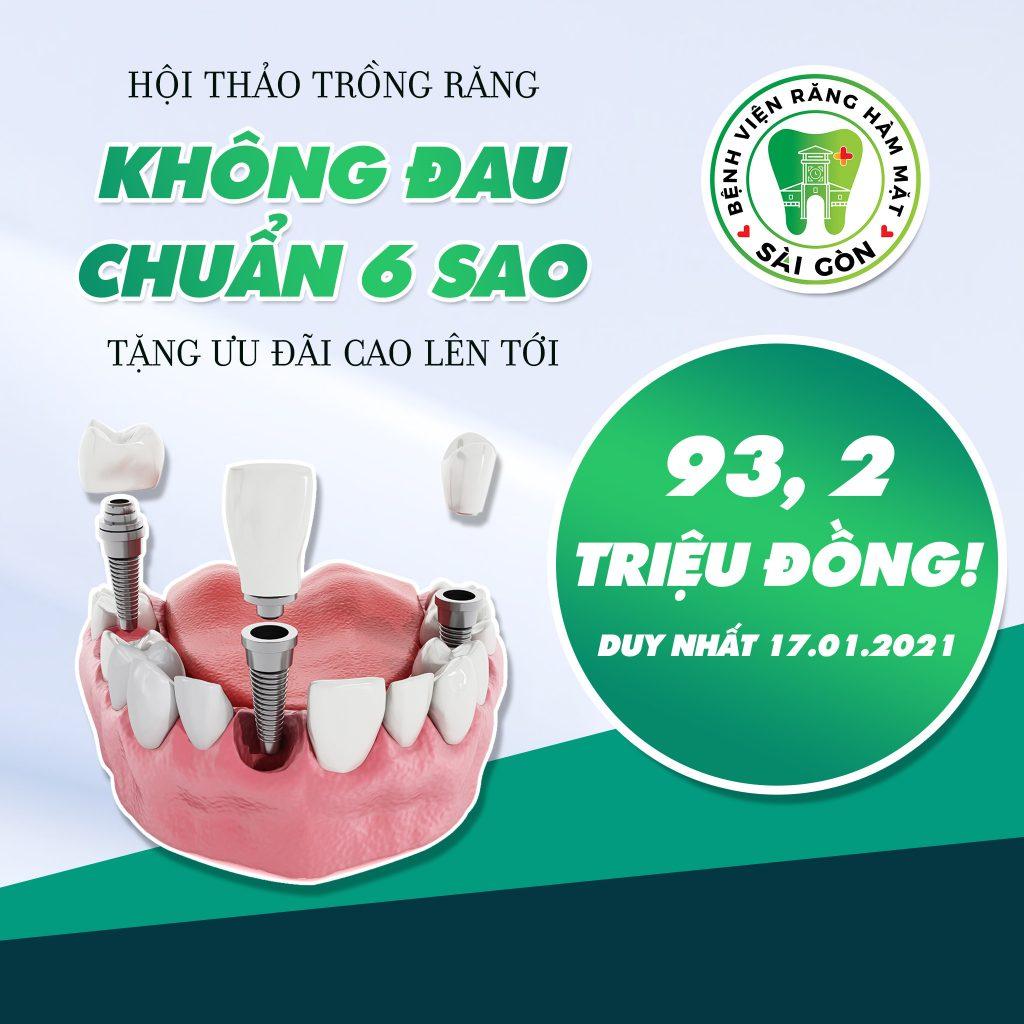 Trồng răng chuẩn 6 sao ưu đãi