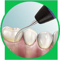 dịch vụ cạo vôi răng