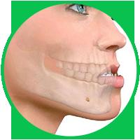 dịch vụ phẫu thuật hàm hô móm